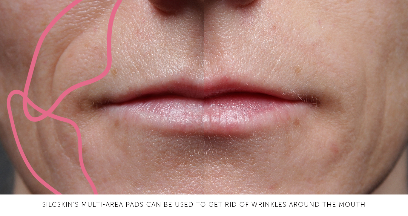 mouth_wrinkles_silcskin