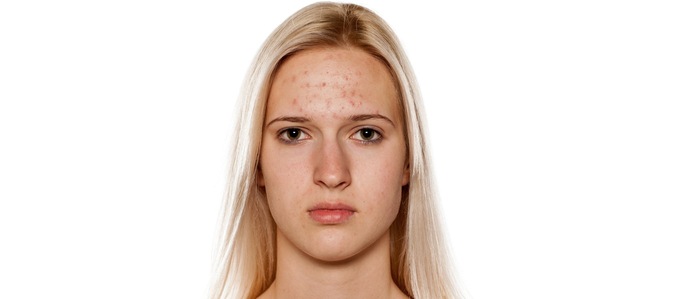 acne_and_silcskin