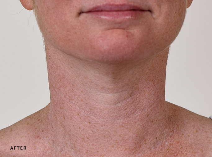 SilcSkin anti-wrinkle pad after neck treatment