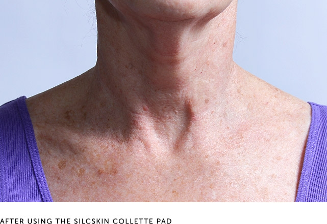 After Using The Silcskin Collette Pad
