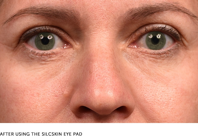 After Using The Silcskin Eye Pad