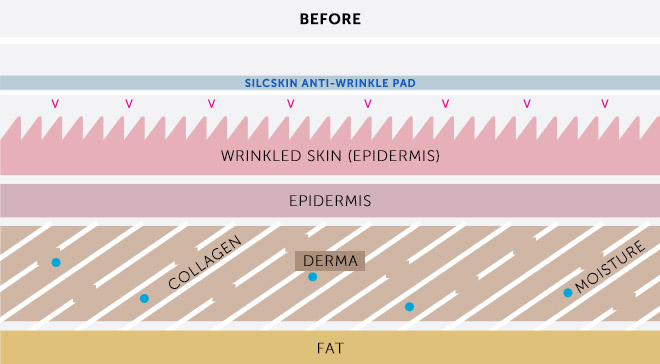 Diagram of Wrinkled Skin